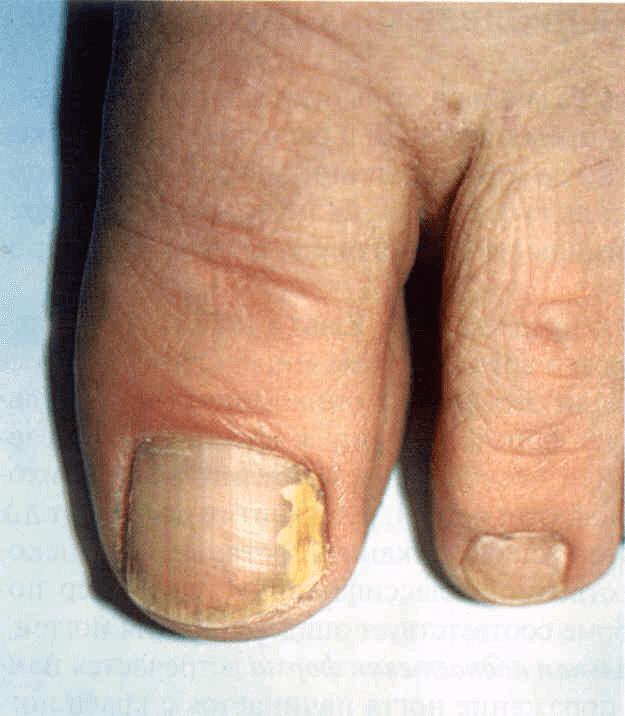 Mikozės ar onichomikozės nuotrauka