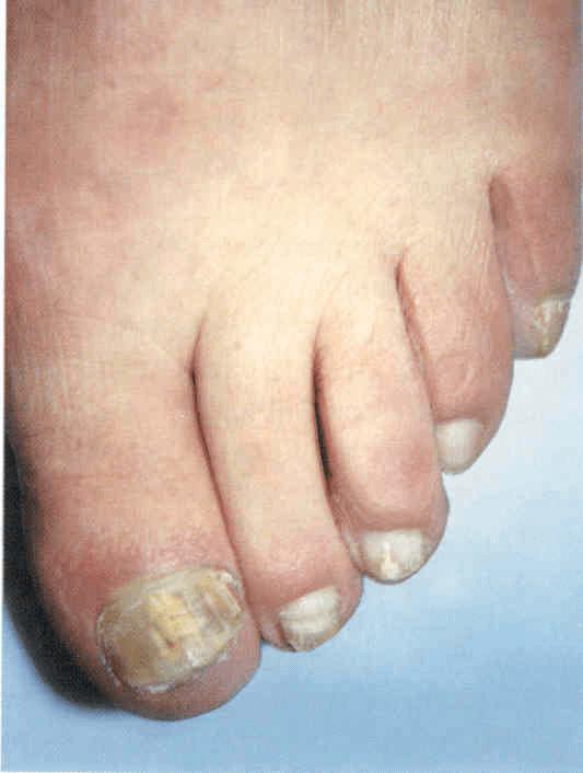 Onichomikozės nuotrauka ir aprašymas
