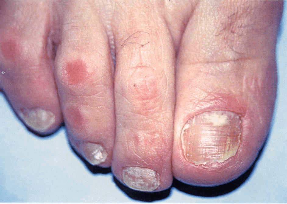 Onichomikozės testas