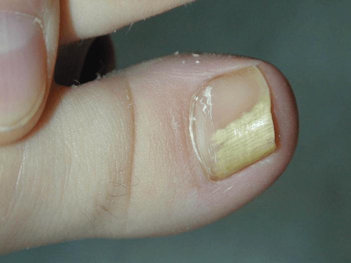 Makšties onichomikozė