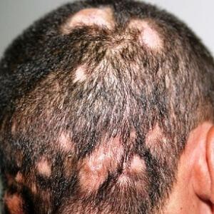Galvos grybelis simptomai